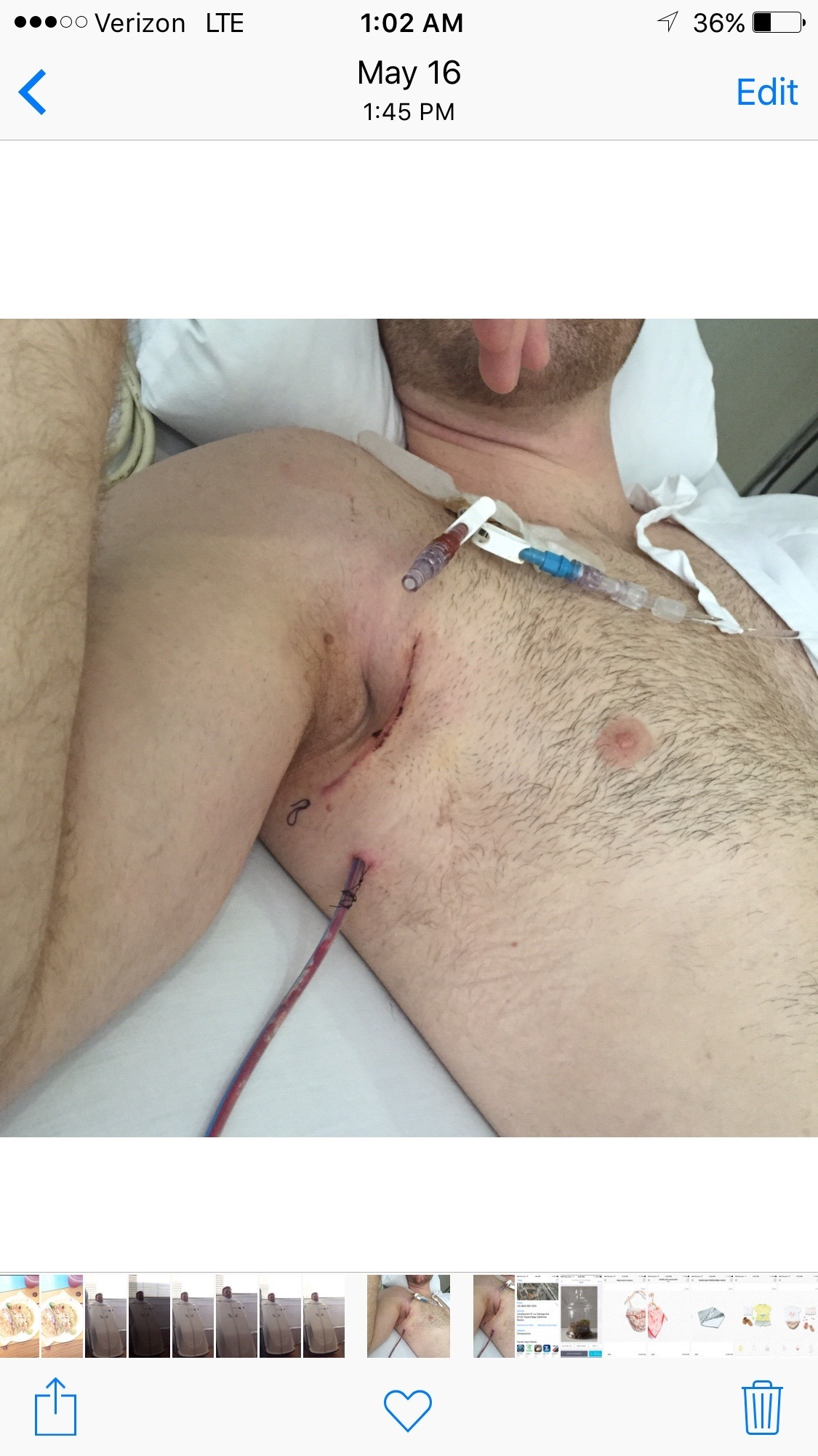 Right after the surgery with the fluid drain below the stitches.they did such an awesome job