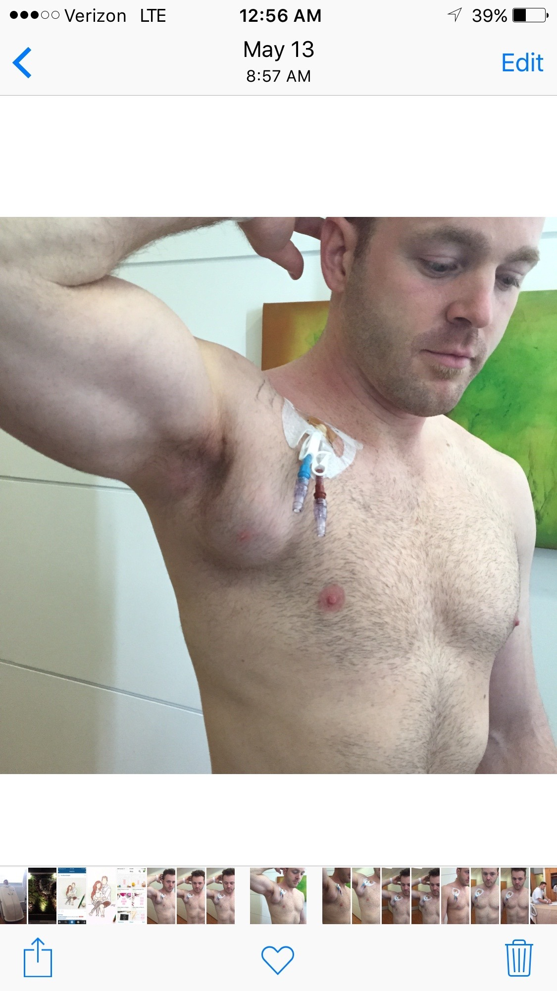 the mass with kneedle_biopsy marks in the center and the catheter out of his chest